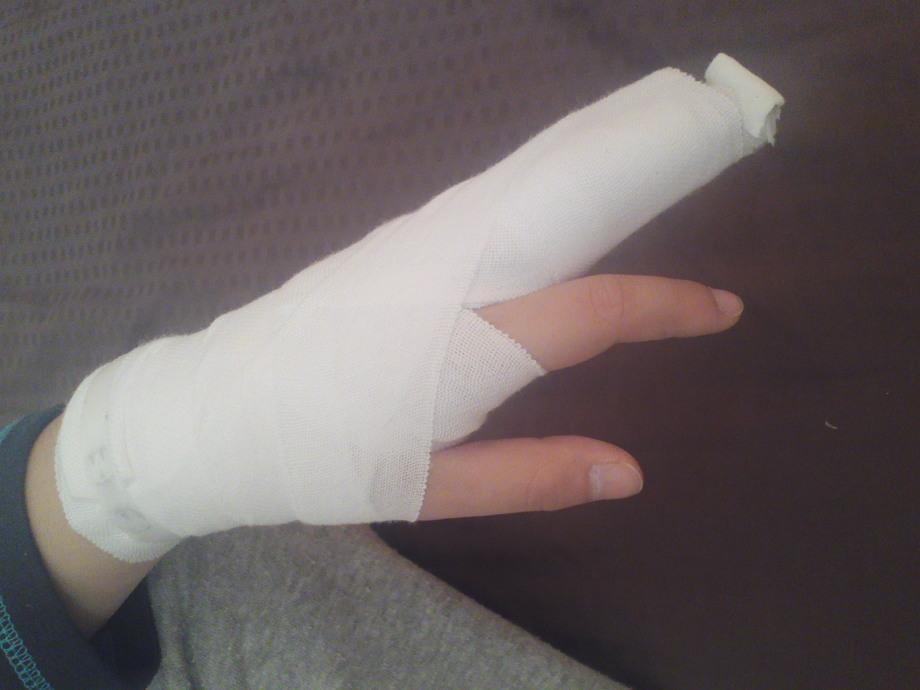 症状 突き指 なぜ?突き指して指が曲がらない…!対処法は?病院行くべき?